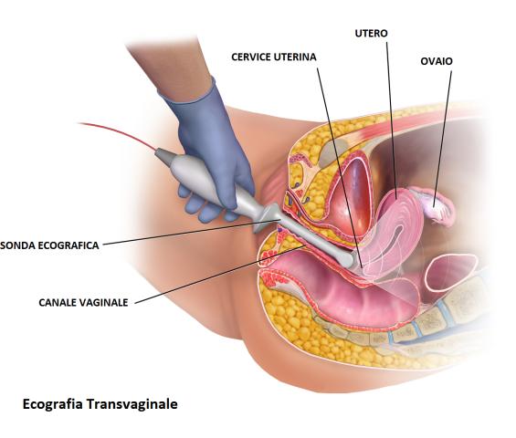 7 tipi di ecografia che si fanno durante la gravidanza bigodino - Diversi tipi di vagina ...