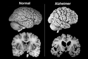 Come fermare la demenza o l'Alzheimer prima che si manifestino i sintomi