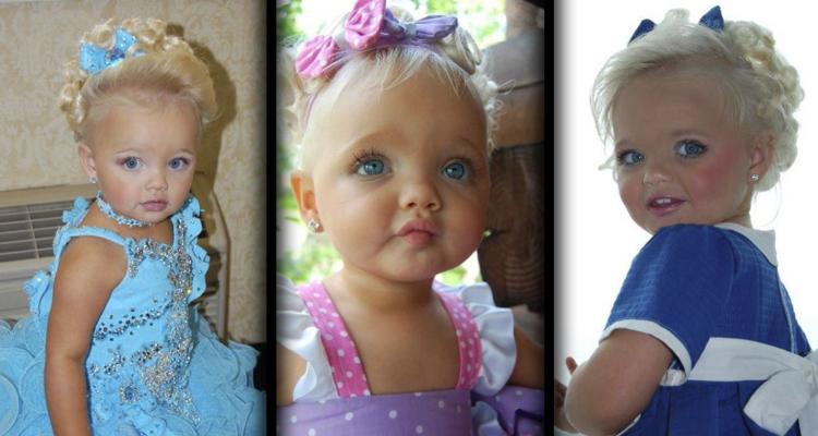 Ecco com'è diventata la bambina che sembra una bambola