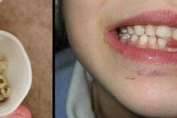 L'appello dei medici: non buttare i denti da latte di tuo figlio