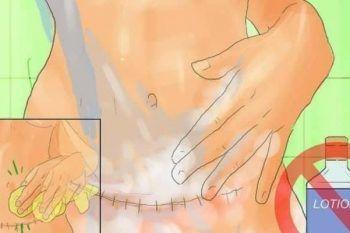 7 cose che dovreste sapere sulla cicatrice del cesareo