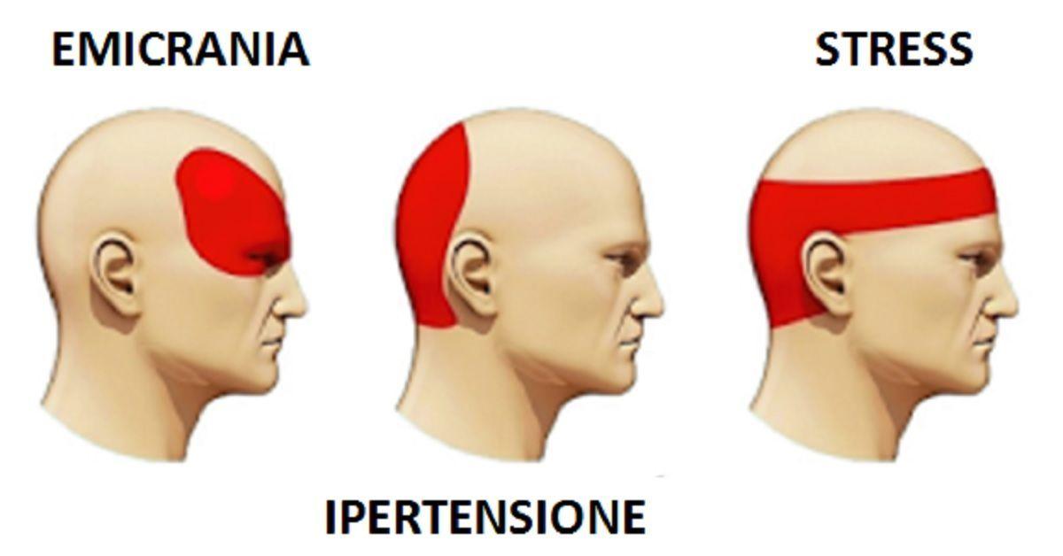 Eliminare il mal di testa in 5 minuti senza ricorrere ai for Mal di testa da pressione alta