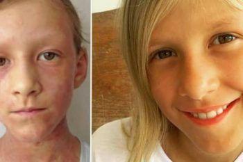 La storia di Maya, la bambina con l'eczema incurabile