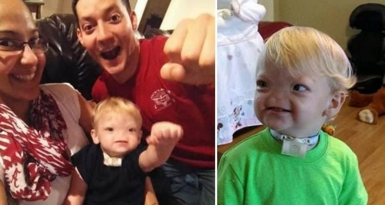 E' morto Eli Thompson, il bambino senza naso che ha sciolto il cuore del mondo intero