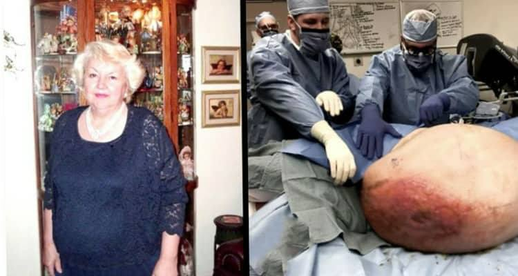 Il suo addome comincia a gonfiarsi a dismisura. I medici scoprono qualcosa mai visto prima.
