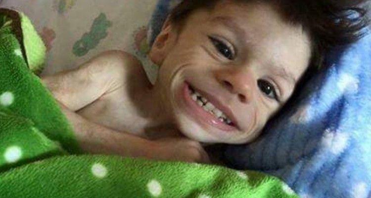 La storia di Ryan, il bambino guerriero che a 7 anni pesava 3 kg, ha commosso il mondo