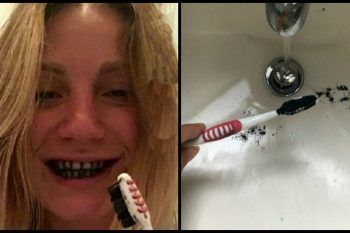 Carbone attivo per lavare i denti? Ecco cosa succede