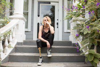 Lauren Wasser, la modella rischia di perdere anche l'altra gamba