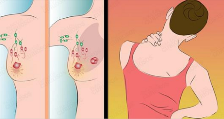 Nove segnali comuni di cancro al seno