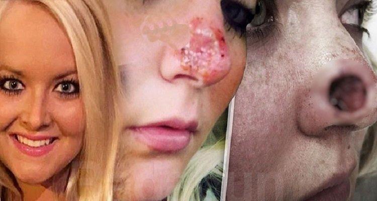 Un errore che tutte le donne fanno le è costato parte del naso