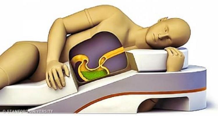 Dormire Con Il Cuscino Tra Le Gambe.La Posizione In Cui Dormi Influisce Sulla Tua Salute Bigodino