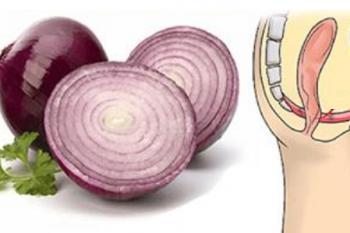 Gli straordinari benefici della cipolla e qualcosa che forse non sapete