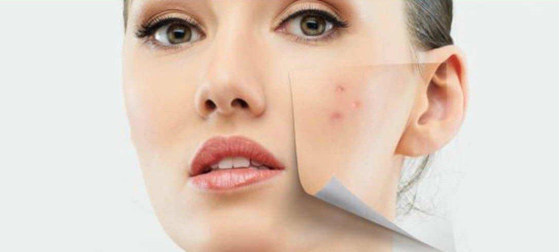 dentifricio-acne