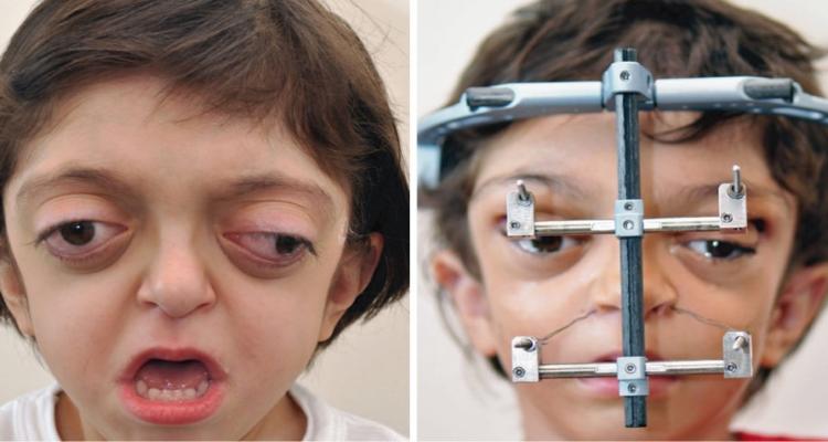 Una strana sindrome ha sfigurato il suo volto alla nascita
