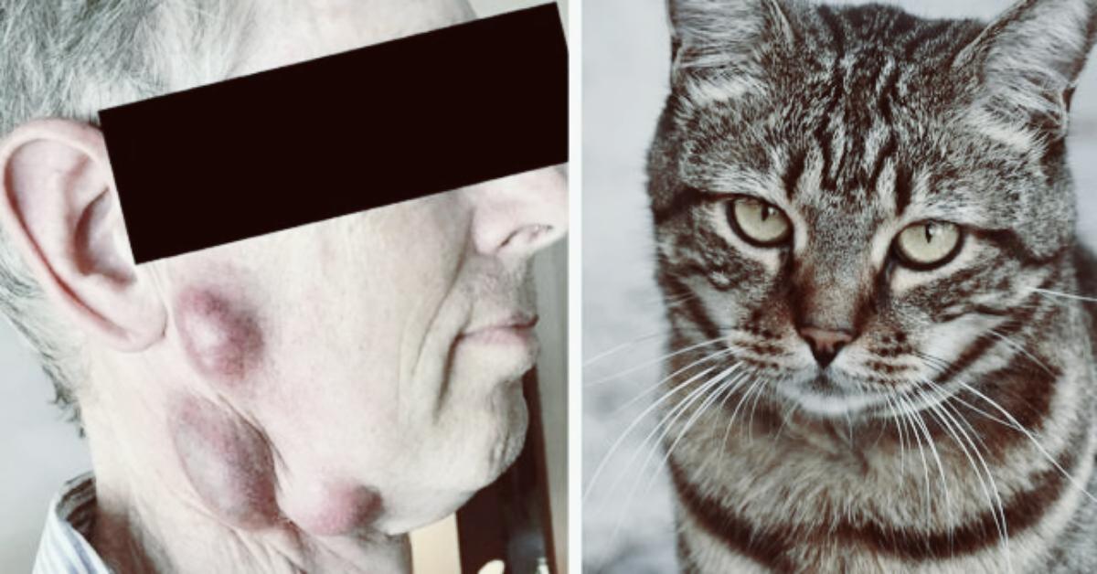 rischia-la-vita-a-causa-di-una-malattia-contratta-dal-suo-gatto