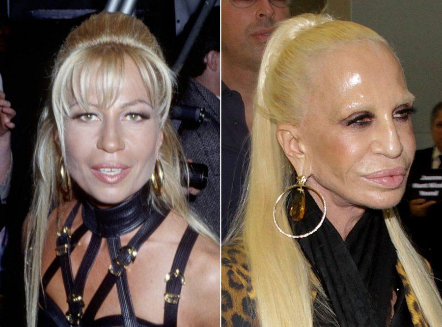 Donatella Versace Oggi Com 232 Cambiata Negli Anni Bigodino