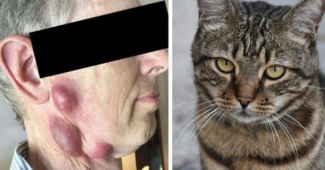 rischia-la-vita-a-causa-di-una-malattia-contratta-dal-suo-gatto2