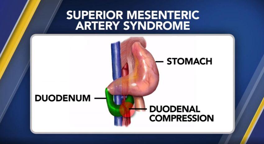 sindrome dell'arteria mesenterica superiore