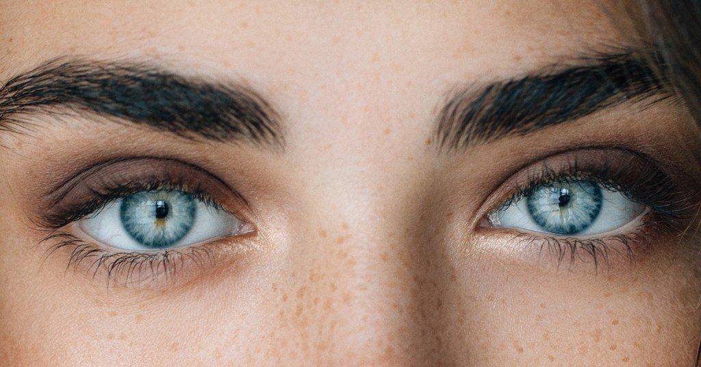 Occhi rossi: rimedi naturali per eliminare il rossore