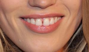 Denti larghi e fortuna