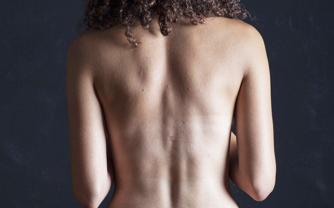 mal-di-schiena-rimedi-naturali
