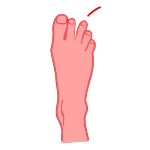 Terzo dito del piede
