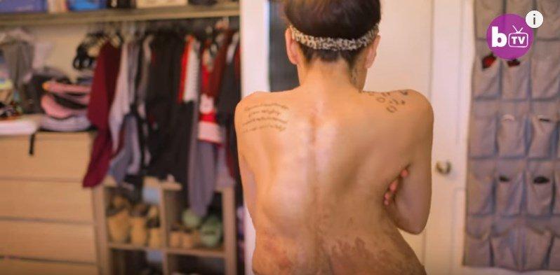 Il suo corpo è pieno di tumori, impara ad accettarsi per aiutare il figlio con lo stesso problema