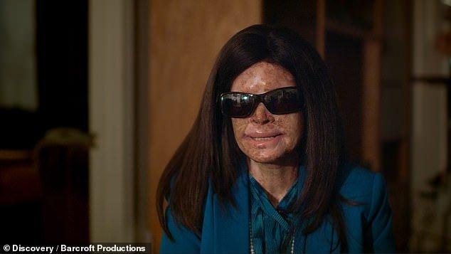 Da 11 anni è costretta a vivere al buio, è 'allergica' alla luce del sole