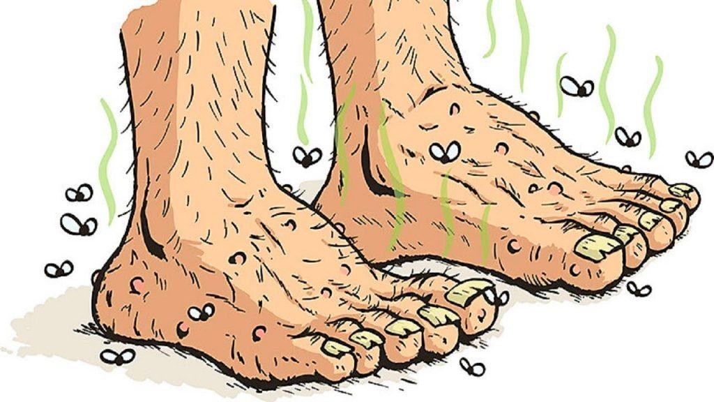 Ecco come fermare il cattivo odore dei piedi