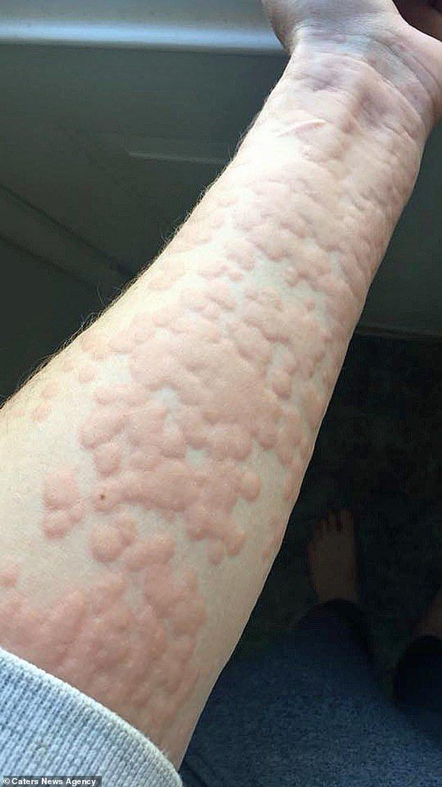 """""""Sono allergica al freddo"""", il dramma di una 21enne canadese"""