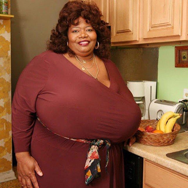 Norma Stitz, la donna con il seno più grande del mondo. La conoscevate?