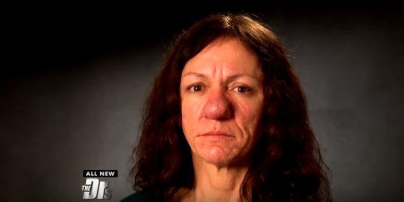 Il naso di questa donna non smetteva di crescere, poi l'incredibile trasformazione