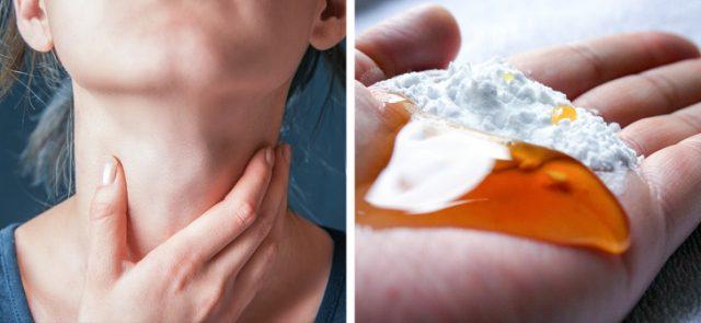bicarbonato-miele