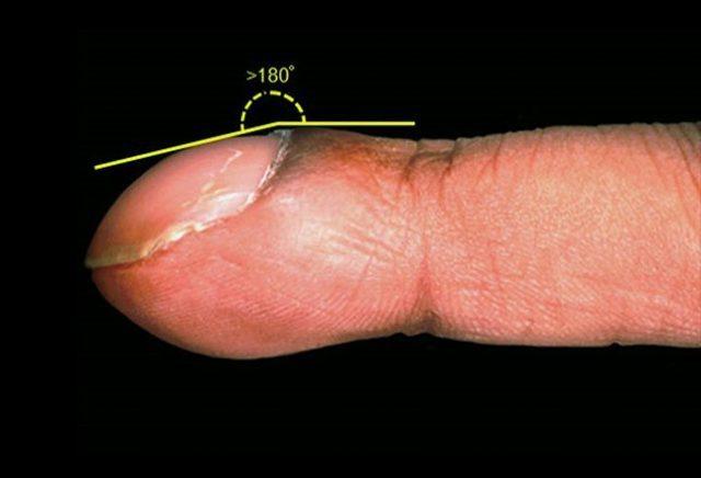 cosa-comportano-le-unghie-curve4