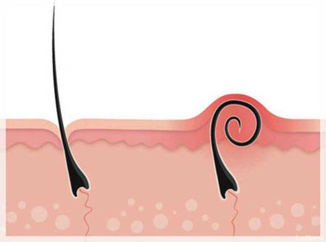 esfoliazione-ceretta