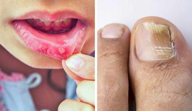 8 effetti collaterali degli antibiotici che i medici raramente ci dicono
