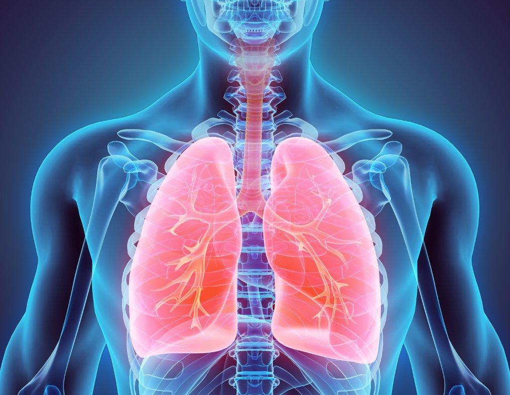 vaccino contro il cancro ai polmoni