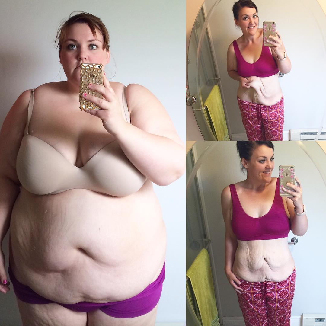Ha messo a rischio il suo matrimonio ma ha scelto di perdere peso