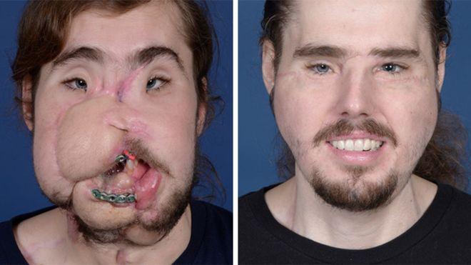 Cameron è tornato a sorridere, intervento chirurgico da record negli USA