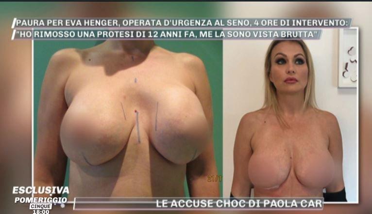 Eva Henger operata d'urgenza al seno