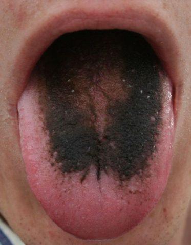 lingua-nera