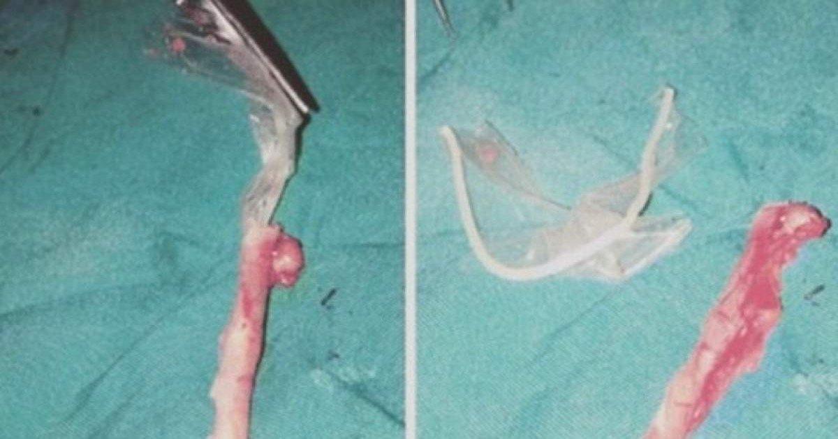 Operano-la-ragazza-di-appendicite-ma-dentro-al-suo-corpo-cè-altro
