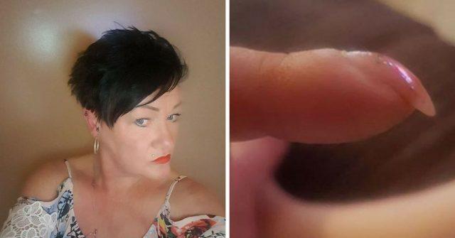 scopre-la-sua-malattia-dopo-aver-postato-una-foto-delle-sue-unghie