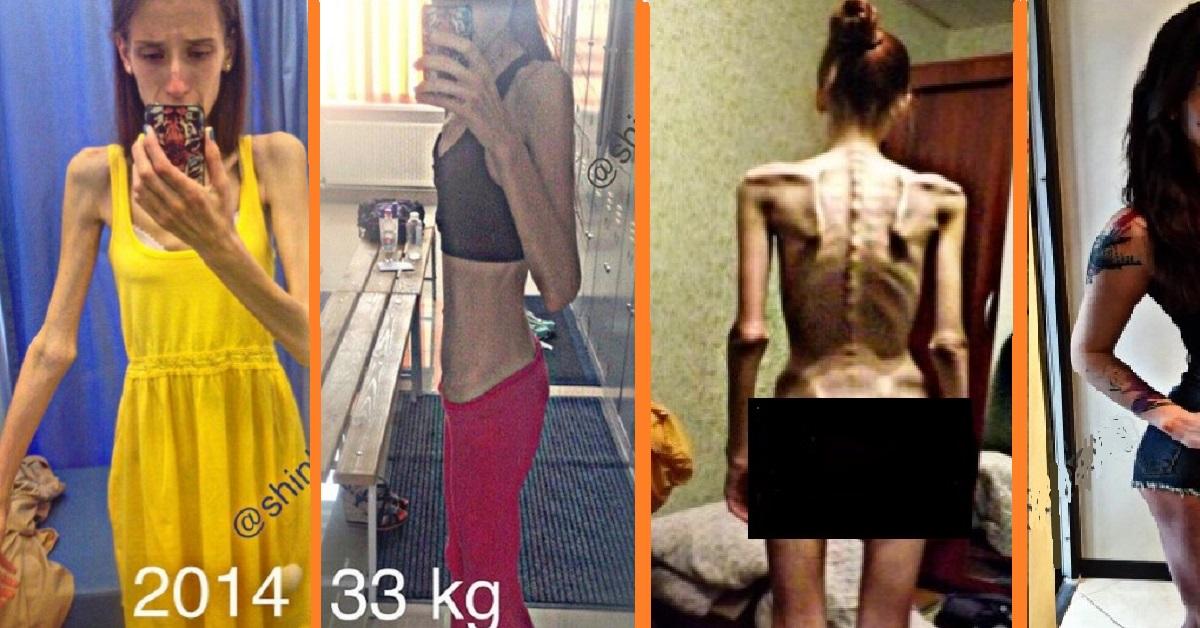 Dall'anoressia alla massa muscolare