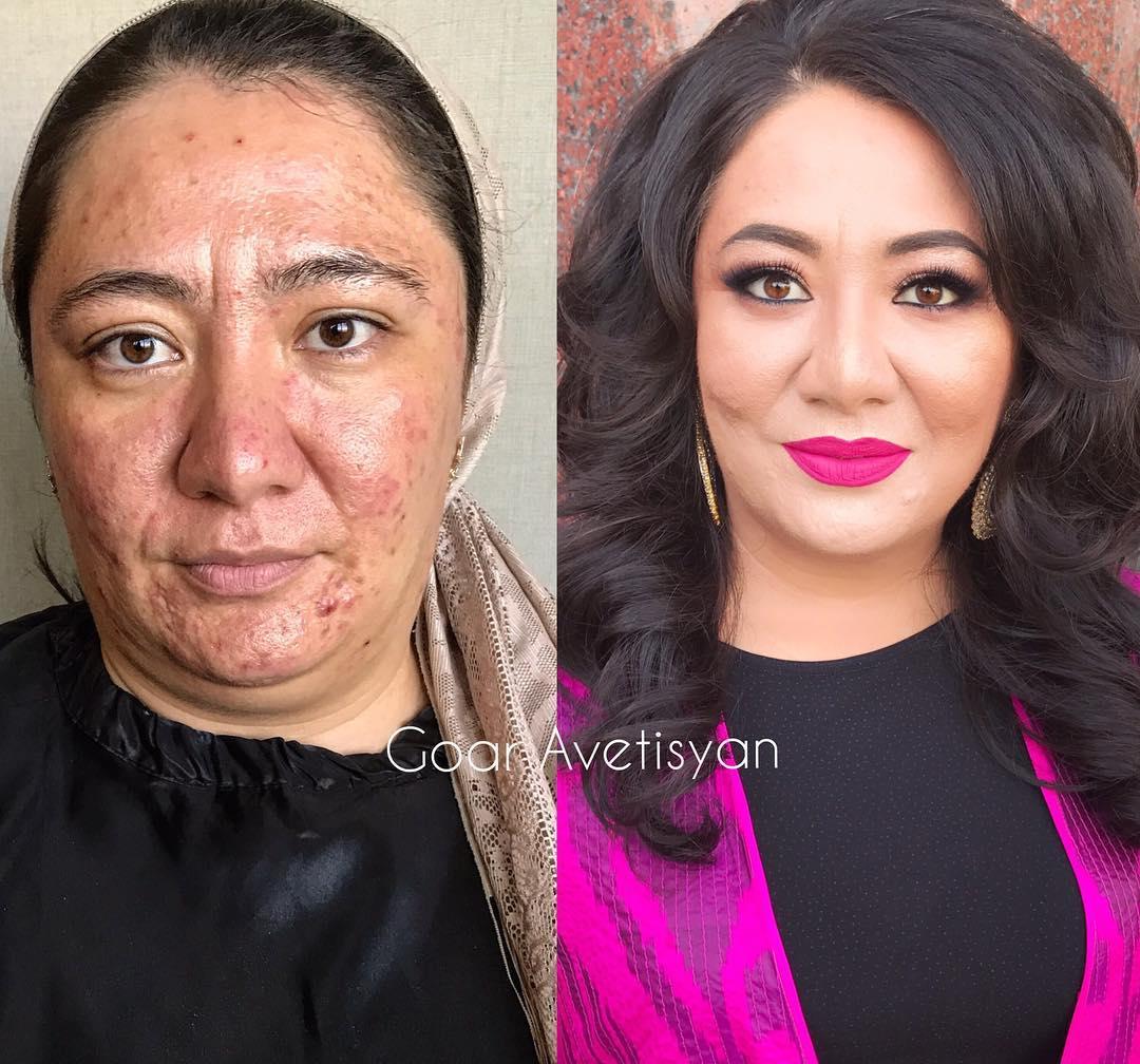 Donna con acne grave si sente bella grazie a una truccatrice