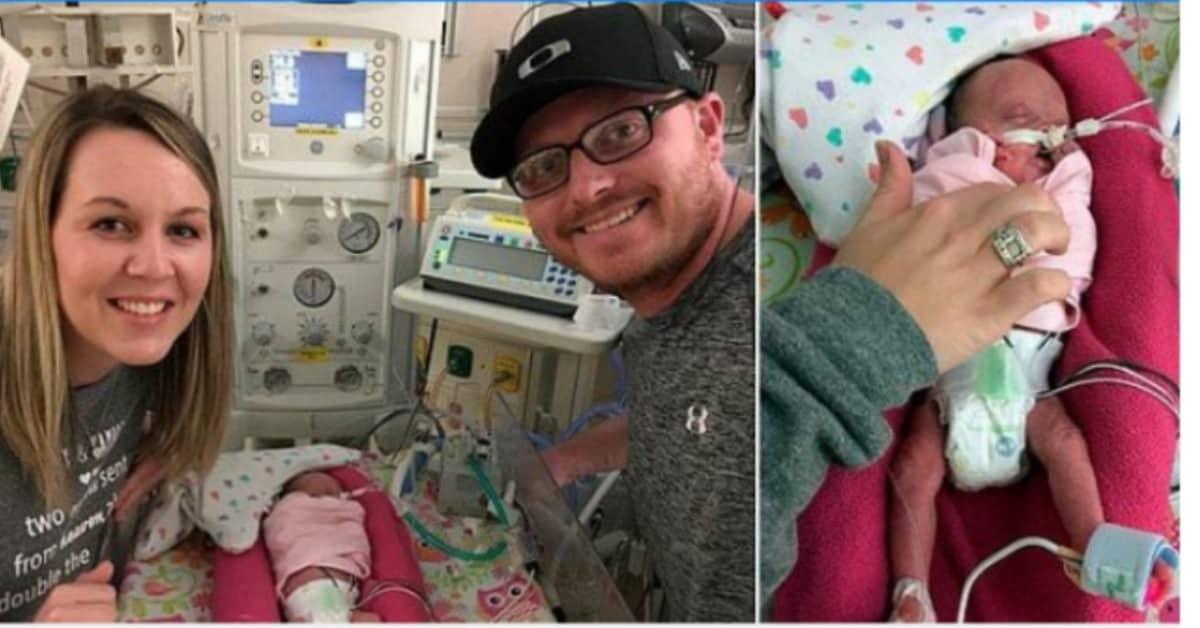 la-storia-delle-gemelle-nate-a-22-settimane-di-gravidanza