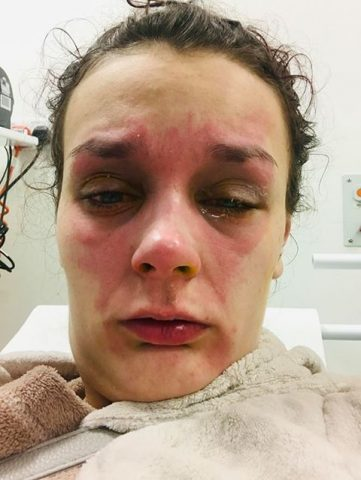 il-terribile-incidente-di-Coortney 2