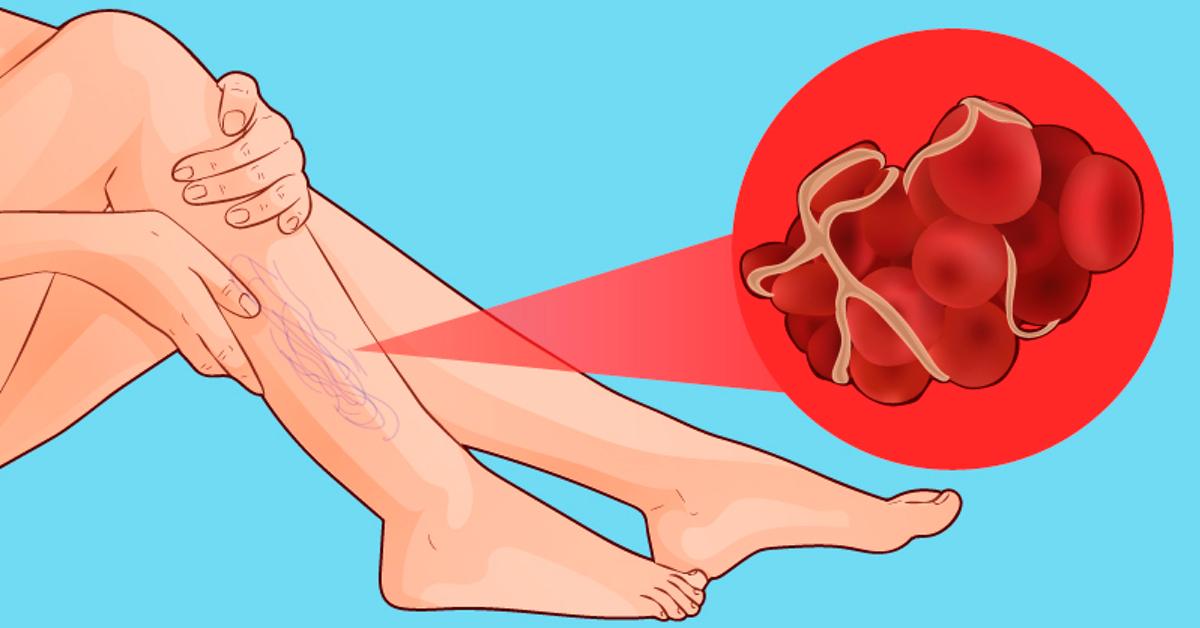 Coagulo di sangue nella gamba: 4 sintomi a cui bisogna fare molta attenzione