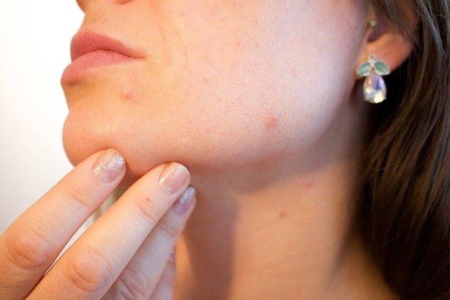 Rimedi casalinghi per l'acne: i più potenti in assoluto