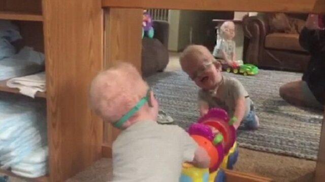 i-gemelli-affetti-da-una-rara-sindrome 1